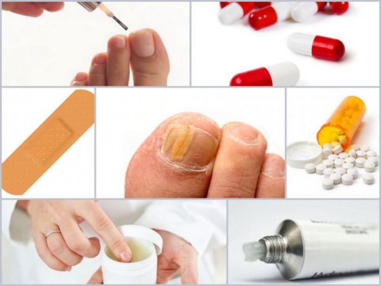 Грибок ногтей на ногах: 110 фото как выглядит и описание чем лечить грибок